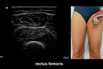 Musculosketal Ultrasound